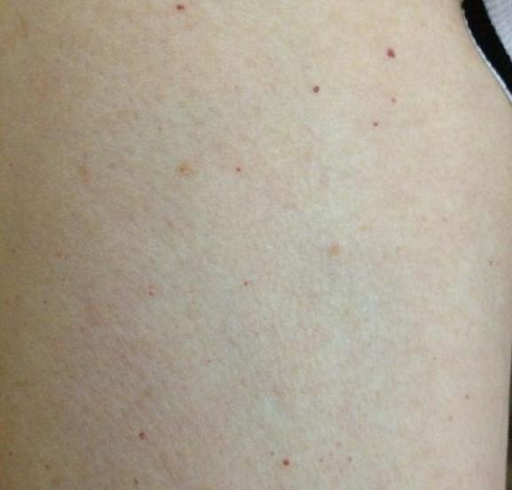 身上起小红点是怎么回事?还是大病的预兆?