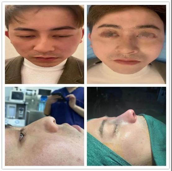 南京艺星美容潘峰主任以个性化设计精细化手术著称,被誉为鼻修复达人